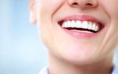 Promoción Implantes Dentales $539.000