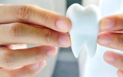 Tener en cuenta antes de la colocación de un implante dental