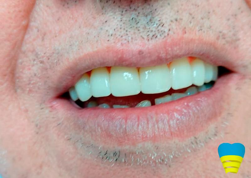 Dentista Implantes: Soluciones para todos